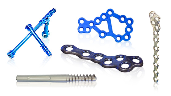 Medical Device Manufacturing, Orthopedic, Trauma, Extremity Implants